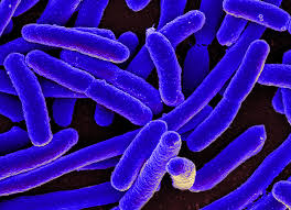 large strain of bacterias